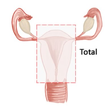 Total Hysterectomy